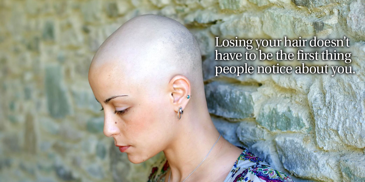 Alopecia Losing your hair doesn't have to be the first thing people notice about you