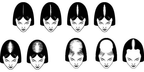 chart of hair loss patterns